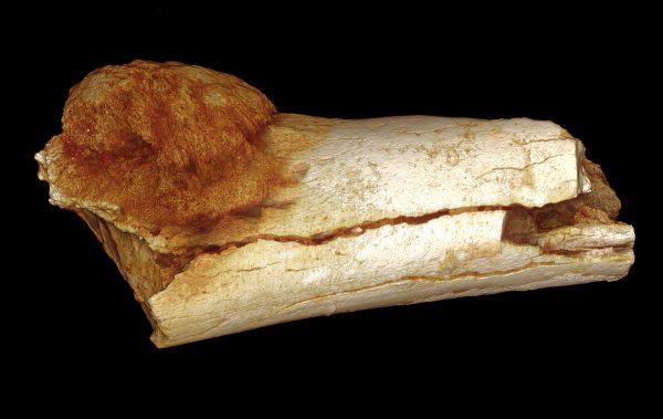 Starożytny nowotwór kości